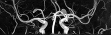 MRA画像(脳血管画像)