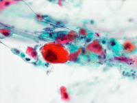 喀痰中の癌細胞(扁平上皮癌)