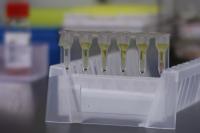 輸血検査の試薬